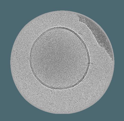 Cryo EM Image of microvesicle.